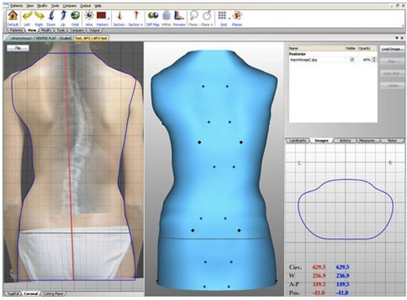 Escaner 3D CAD-CAM